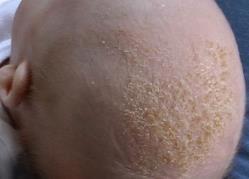 乳児脂漏性皮膚炎