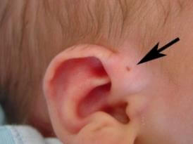 先天性耳瘻孔